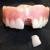 Denture Repairs by Lori