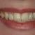 Smiles On Peachtree - Dr. Louisa Berman, DMD