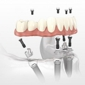 Miracle Smile Dentistry - Coral Gables, FL. Fixed Implants Denture - All on 4