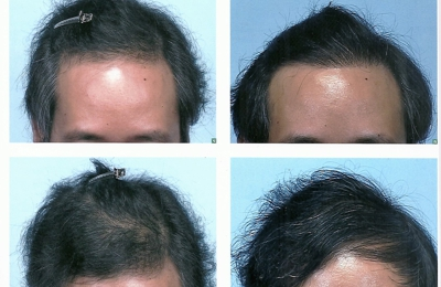 Dermatology Associates Of Atlanta PC - Atlanta, GA. Official comb-over result photos provided by the doctor.  Also notice the different angle and lighting. left - BEFORE; right - AFTER