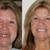 New Image Dental Implant Center