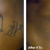 Eraser Clinic Laser Tattoo Removal