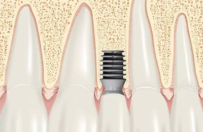 Implant Dentistry of the Northshore - Marblehead, MA