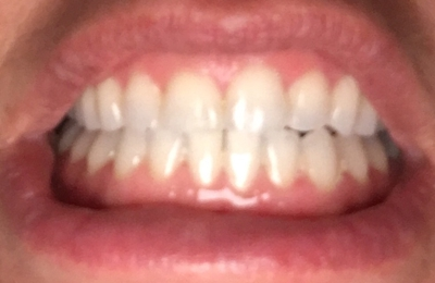 Gottlieb & Daniels Orthodontics - Cheshire, CT. After
