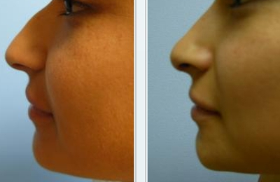 Facial surgery glendora photo 900