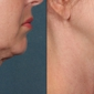 Beauty Redefined A Medical Aesthetic Clinic - San Jose, CA