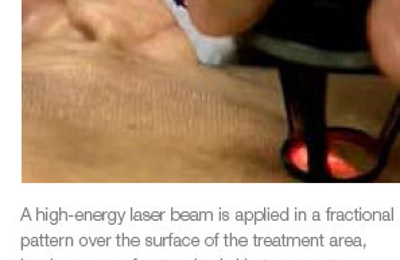 Dermatology Laser & Vein Specialists of the Carolinas PLLC - Charlotte, NC