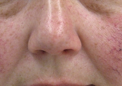 Poole Dermatology - New Orleans, LA