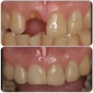 Miracle Smile Dentistry - Coral Gables, FL. Before and after - Denta implants - coral Gables Dentist