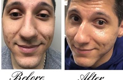 Elite VEIN & Hair Restoration - Dearborn, MI