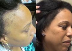 Hair Restoration Specialists - Atlanta, GA