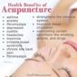 Zen Den Acupuncture - Houston, TX. Acupuncture Works
