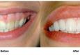 Feather Touch Dental Care - Atlanta, GA. Feather Touch Dental Care | Atlanta, GA