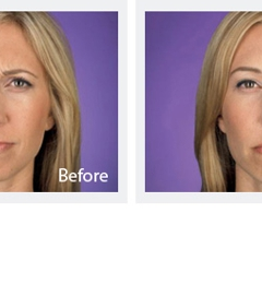 A Center For Dermatology, Cosmetic and Laser Surgery - Jupiter, FL