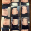 Slender Me Medical Weight Loss and Aesthetics Center Inc.