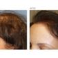 Beverly Hills Hair Restoration - Beverly Hills, CA