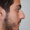 Zuliani Facial Aesthetics: Dr. Giancarlo F. Zuliani MD
