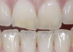 Sonora Dentist - Sonora, CA