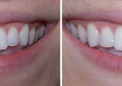 University Dental Group - Orlando, FL