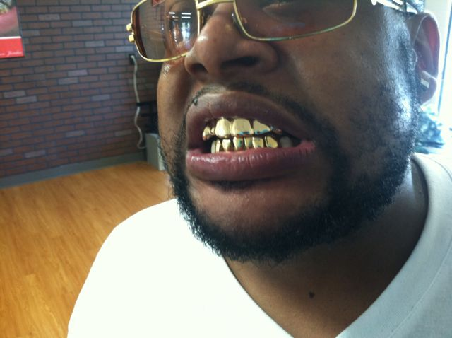 Gold Teeth Specialists 4215 Cane Run Rd, Louisville, KY 40216 - YP com