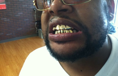 Gold Teeth Specialists - Louisville, KY