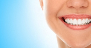 Veneers vary in cost, but resin ones are cheaper than porcelain.