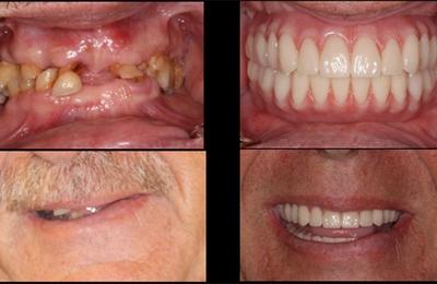 Stone Ridge Dental - San Antonio, TX