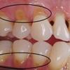 Apple Valley Dental Associates