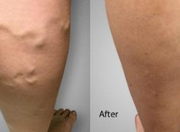Advanced Varicose Vein Treatments of Manhattan - New York, NY