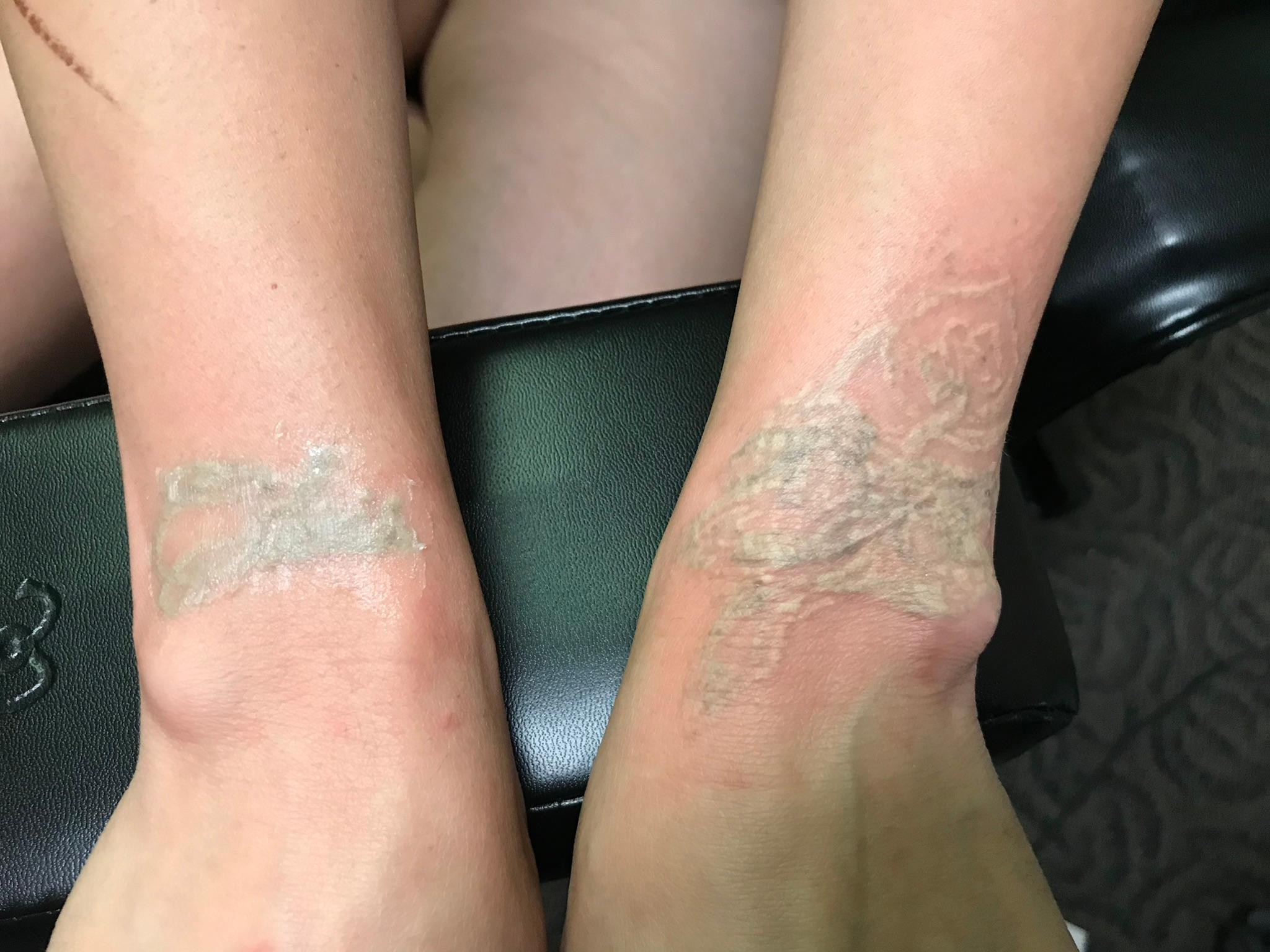 Tattoo Removal Kansas City Mo