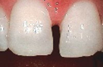 Jorge F. Zapata DDS - Gentle Family Dentistry - Ogden, UT