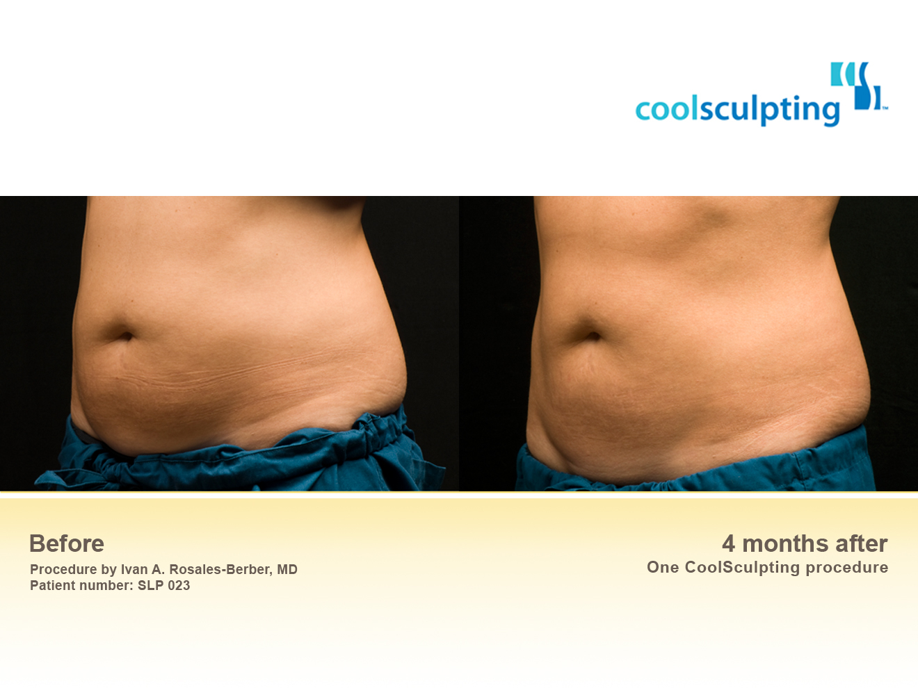 san diego dermatologists coolsculpting - HD 1320×990