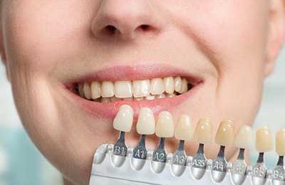 Lovett Dental Beaumont - Beaumont, TX