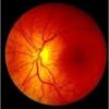 CNY Retinal Associates, PC
